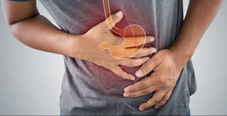 CBD for Irritable Bowel Syndrome