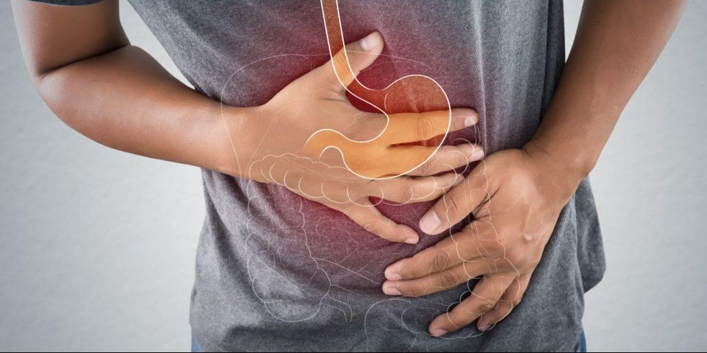 CBD for Irritable Bowel Syndrome