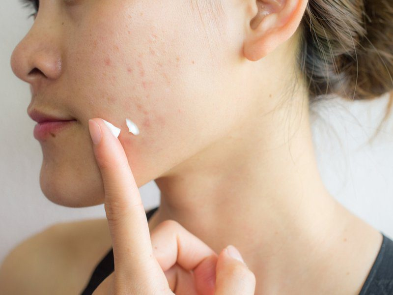 How to Use CBD for Acne